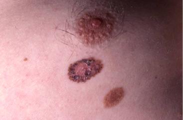 Les maladies denfant. Le psoriasis